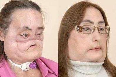 connie_culp2009-disfigurednew-face-sxs-med-wide