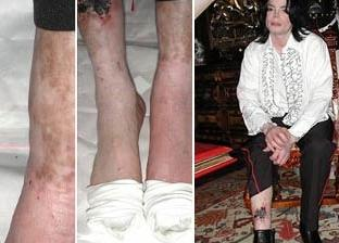 Michael's legs show wounds and punctures