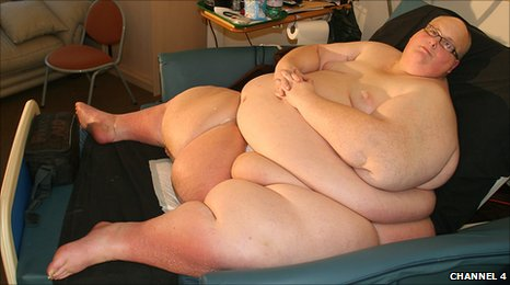Former Fattest Man Sues British Health System for Obesity