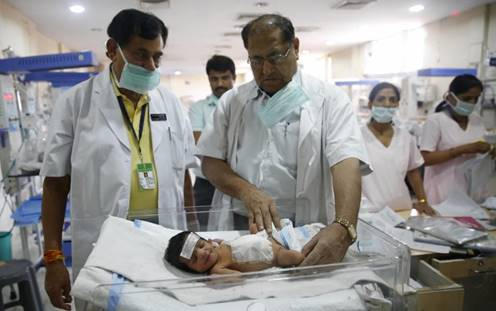 Baby girl, parasitic twin removed
