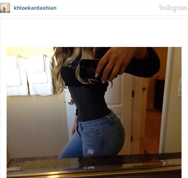Khloe Kardashian, butt injections