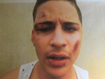 Jhohan Lemos, 17, was arrested by the police for criminal possession of a knife and resisting arrest. He is shown bruised and battered after his run-in with police.