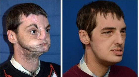 Richard Norris went through a 36-hour surgery . Before the transplant (L) and 114 days AFTER the transplant (R)